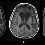Фронтотемпорална деменција - варијанта понашања